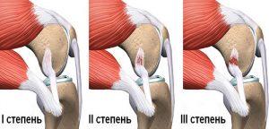 Растяжение мышц на ноге