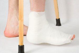 какие бывают переломы ног