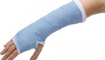 Перелом руки: виды травм, симптоматика, диагностика, лечение