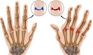 лфк при ревматоидном артрите