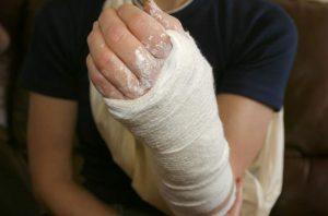 какие бывают перелом рук и лечение