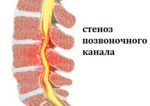 диагностирование стеноза и нахождение причин
