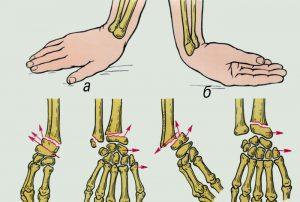 диагностика руки и выявление причины