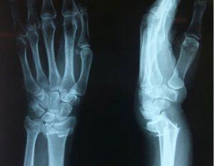 отличительные особенности переломов