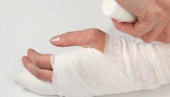 Вывих руки: симптоматика, терапия, диагностика, профилактика