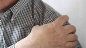 Плечелопаточный периартроз: что это такое? Симптомы и лечение