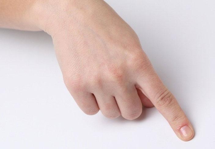 Перелом пальца на руке: причины, лечение, реабилитация