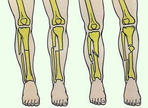 симптомы и лечение переломов у большеберцовой кости