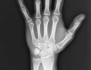 симптомы и реабилитация перелома кисти руки