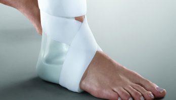 Перелом лодыжки: симптомы, причины, лечение, профилактика