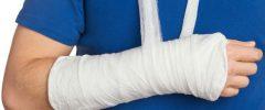 Перелом кисти руки: симптомы, первая помощь, лечение