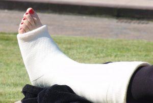 нога и гупс, виды переломов