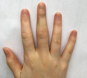 палец на руке, опухший, отличия