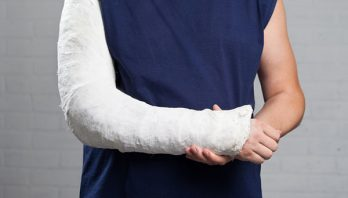 Перелом со смещением: причины, лечение, реабилитация