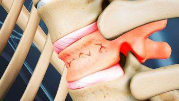 Компрессионный перелом позвоночника: причины, лечение, профилактика