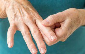 мази от артрита