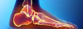 Перелом плюсневой кости стопы: сколько заживает, лечение и реабилитация