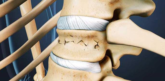 Перелом позвоночника: лечение и реабилитация, причины, профилактика