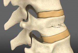 все о переломах позвоночника и лечении