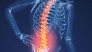 о препаратах и лечении болей в позвонке